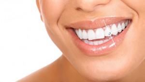Украшения зубов
