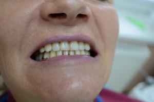 Бюгельный протез установленный в полости рта