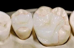 Восстановили зуб вкладкой. Что важно?