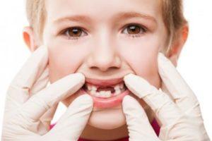 5 важных фактов о детских зубах
