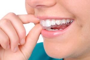 Ночные капы для зубов