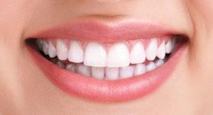 Негативные последствия имплантации зубов