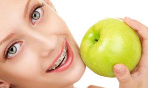 Правильное питание при брекетах